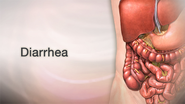 <div class=media-desc><strong>Diarrhea</strong><p>Diarrhea isn't something most people want to talk about, much less have. Not only can diarrhea be uncomfortable, with gas, bloating, and that mad dash to the toilet, but it's a sign that you're either sick, or you've eaten something that really didn't agree with you. With diarrhea, the stools become loose and watery instead of solid. If you have diarrhea, there's a good chance you picked up a stomach virus. Or, you may have gotten food poisoning from eating food or drinking water that was contaminated with bacteria. 